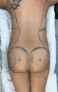 liposuccion-antes-1