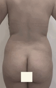 liposuccion-antes-2