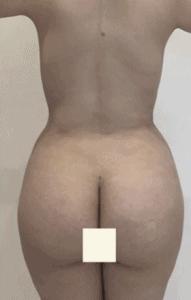 liposuccion-despues-2