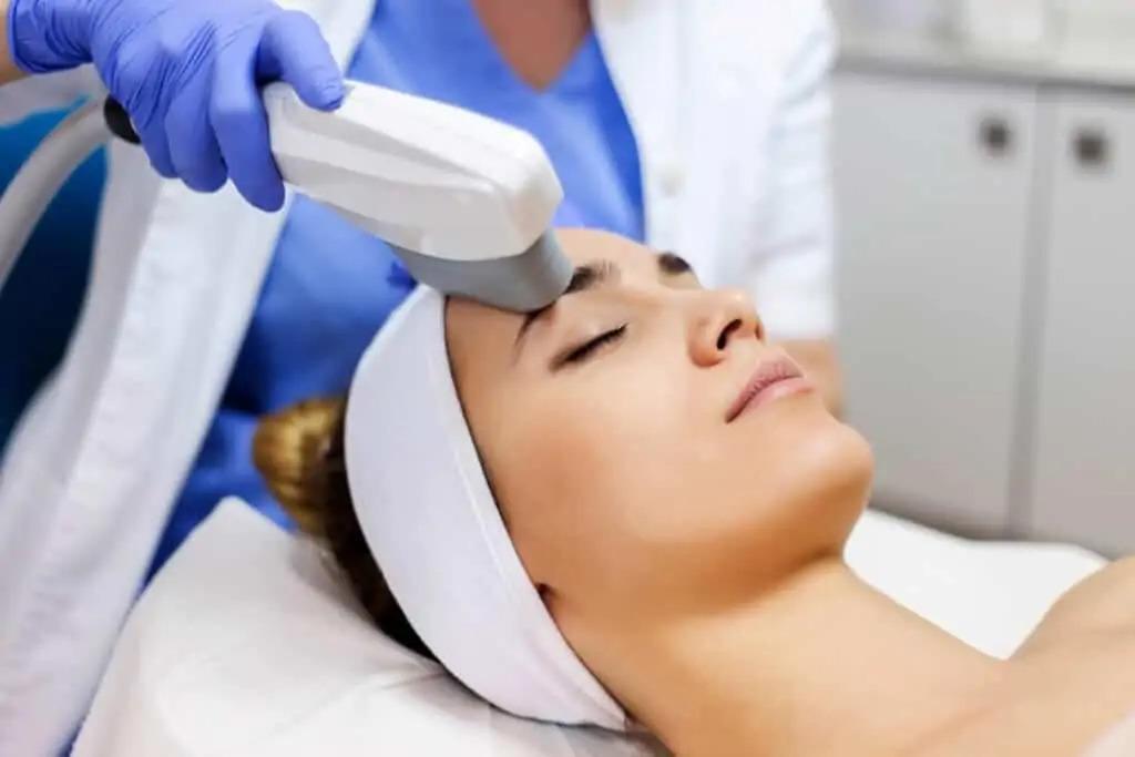ipl contra acne