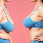 Levantamiento y aumento de senos, diferencias