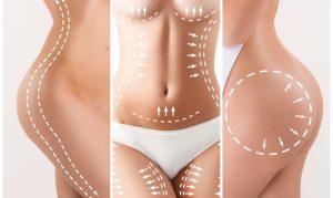 Diferencias entre lipoescultura y liposucción