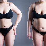 Liposucción como tratamiento estético popular